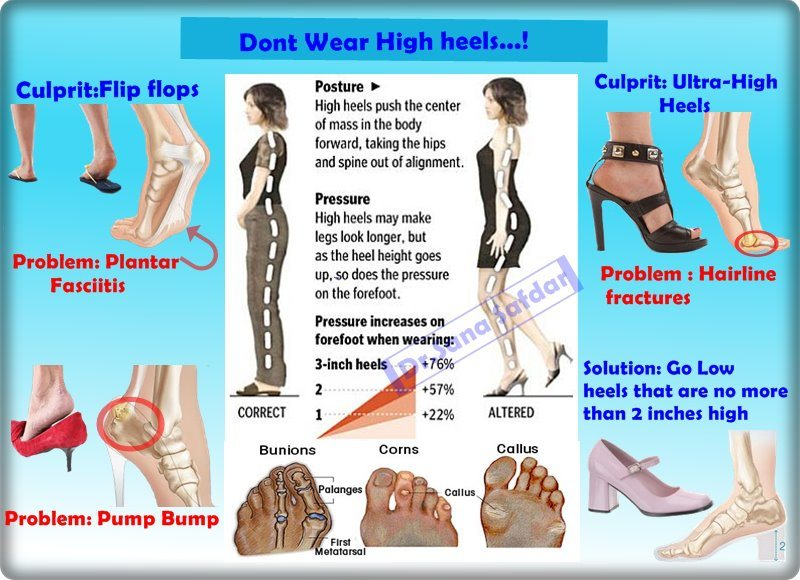 Dont-Wear-High-Heels