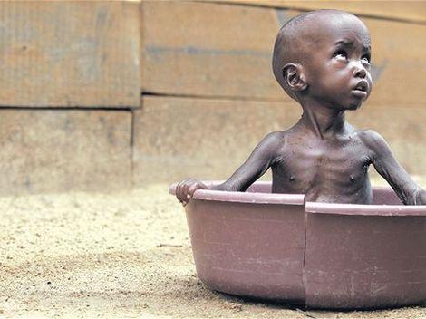 143628-hladomor-afrika-dieta-clanok