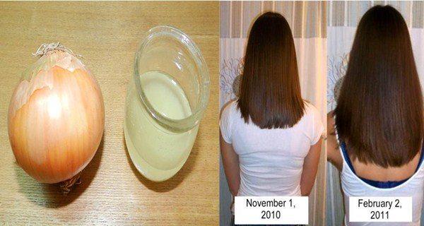grow-hair